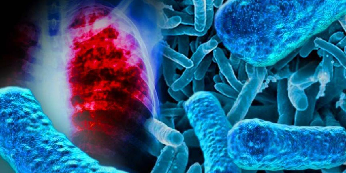 People at two Duplin County schools possibly exposed to TB