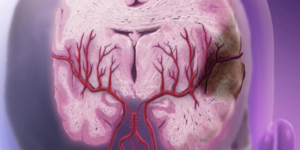 World Stroke Day: How we can prevent a stroke from happening