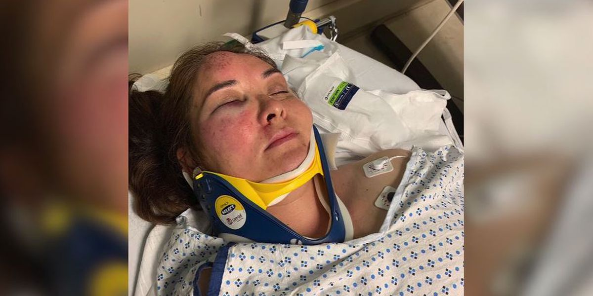 13-year-old school bully punches N.J. mother, knocks her unconscious, family says