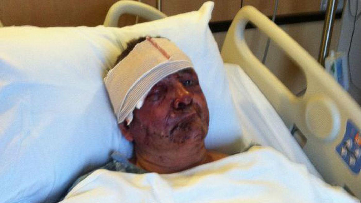 Man accused of beating victim so severely, eyeball was ...