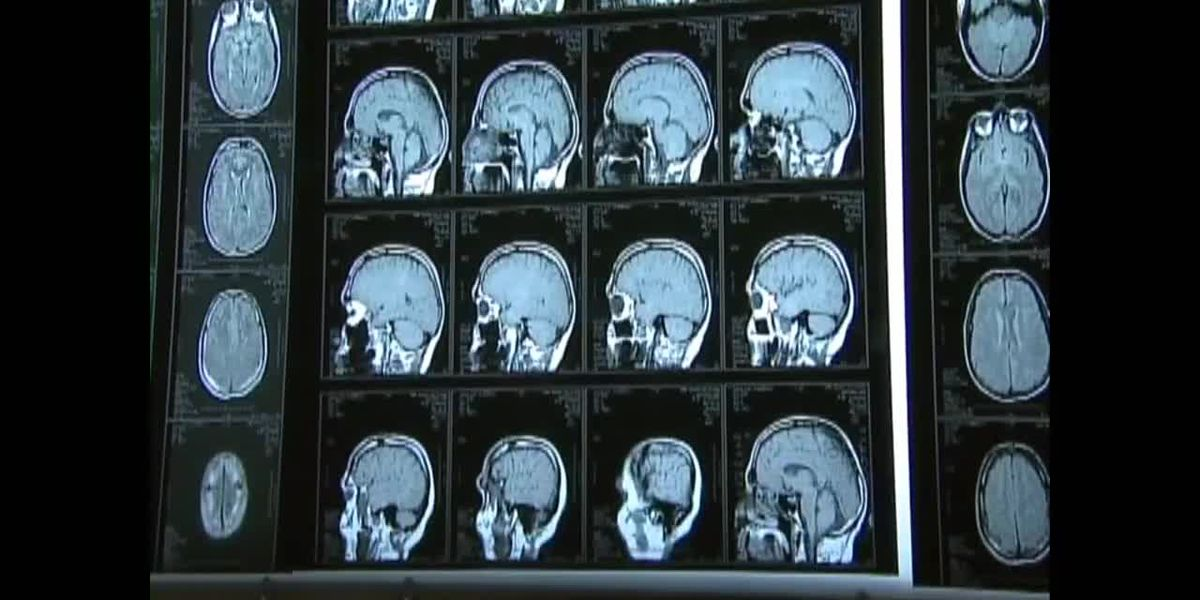 Using A.I. to better understand concussions