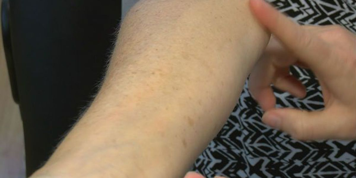 Plaid Pack: Skin cancer cases on the rise